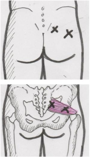Anatomie des Piriformis Muskels mit Markierung der Triggerpunkte für die Massage