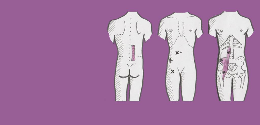 Titelillustration für Triggerpunktmassage im Bett: Anatomie des Psoas-Muskels
